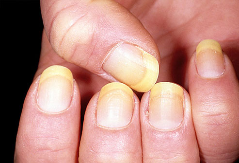 Fingernails and Thyroid Disease http://bernardbuachi.wordpress.com/2011/11/09/what-your-nails-say-about-your-health/